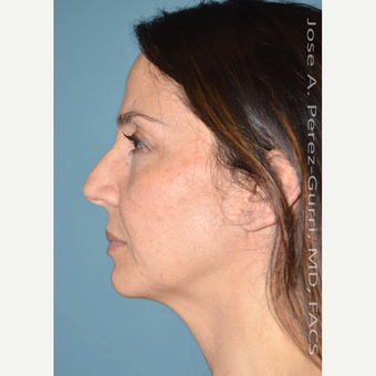 35-44 year old woman treated with Rhinoplasty before 3614646