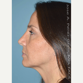 35-44 year old woman treated with Rhinoplasty after 3614646