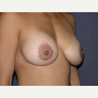 35-44 year old woman treated with Breast Augmentation after 3536580
