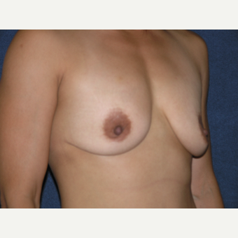 35-44 year old woman treated with Breast Augmentation before 3536580
