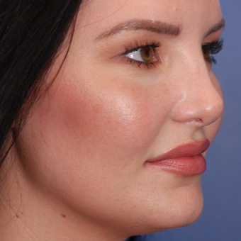 25-34 year old woman treated with Rhinoplasty after 3624092