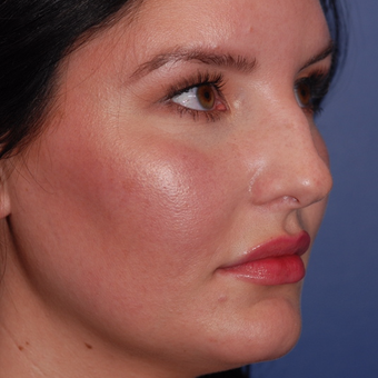 25-34 year old woman treated with Rhinoplasty before 3624092