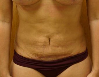 SmartLipo after 1013476