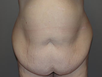 tummy tuck after gastric bypass before 1063911