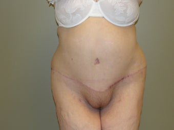 tummy tuck after gastric bypass after 1063911