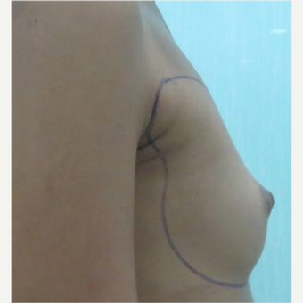 18-24 year old woman treated with Breast Fat Transfer before 3073355
