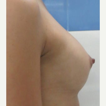 18-24 year old woman treated with Breast Fat Transfer after 3073355