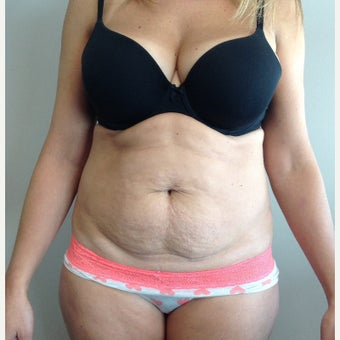 35-44 year old woman treated with Tummy Tuck before 2148914