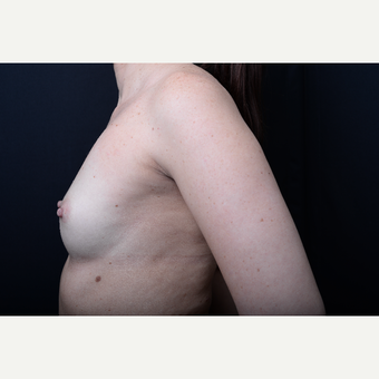 35-44 year old woman treated with Breast Augmentation before 3384071