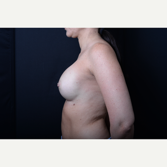 35-44 year old woman treated with Breast Augmentation after 3384071