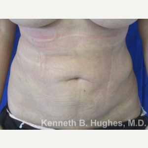 Liposuction Revision after 3164395