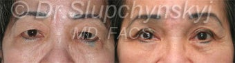 Upper Eyelid Lift before 1117195