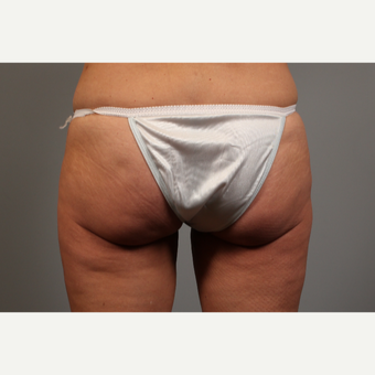 48 year old woman treated with Brazilian Butt Lift Revision after 2976593