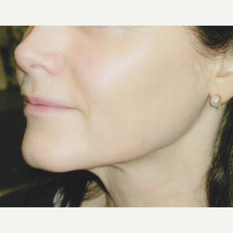 55-64 year old woman treated with Sculptra after 3022492