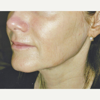 55-64 year old woman treated with Sculptra before 3022492