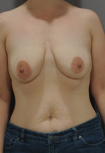 32 year old female. Silicone implants- 397 x 2. before 1245997