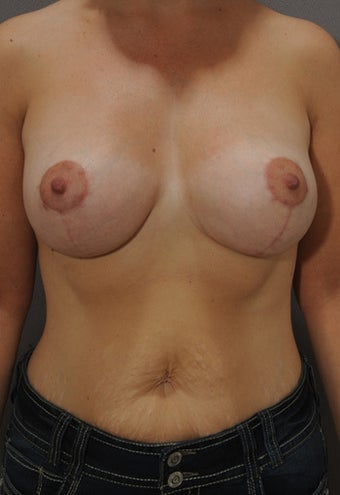 32 year old female. Silicone implants- 397 x 2. after 1245997