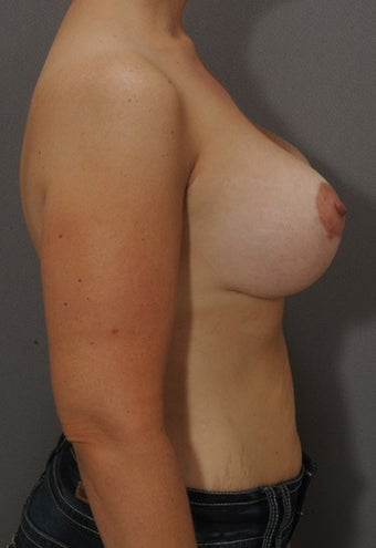 32 year old female. Silicone implants- 397 x 2. 1245997
