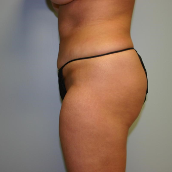 29 year old woman treated with Liposuction after 3442419