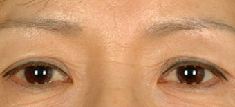 Asian Eyelid Surgery before 1208025