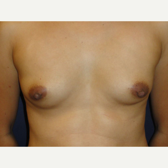 35-44 year old woman treated with Breast Implants before 3075981