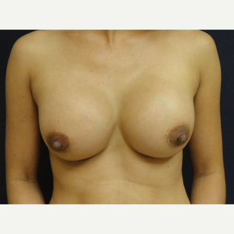 35-44 year old woman treated with Breast Implants after 3075981