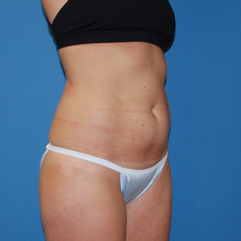 25-34 year old woman treated with SculpSure before 3454359