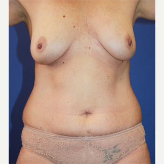 35-44 year old woman treated with Mommy Makeover before 3506773