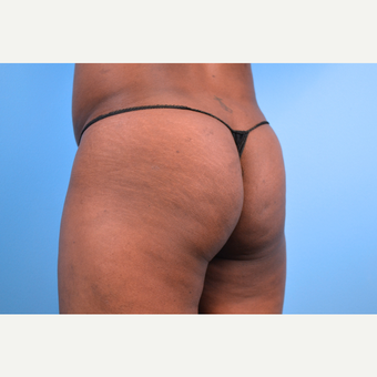 35-44 year old woman treated with Butt Implants, 5 months post-op before 2730359