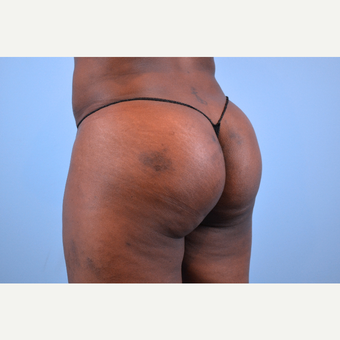 35-44 year old woman treated with Butt Implants, 5 months post-op after 2730359