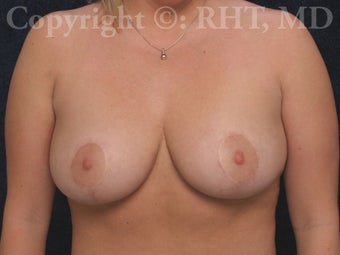 Breast Lift (mastopexy) after 254525