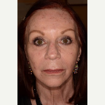 Full face rejuvenation with Fraxel Repair CO2 laser resurfacing