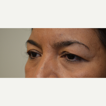 35-44 year old woman treated with Eyelid Surgery before 3097774
