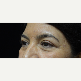 35-44 year old woman treated with Eyelid Surgery after 3097774
