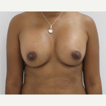 35-44 year old woman treated with Breast Augmentation after 3060234