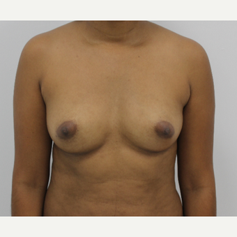 35-44 year old woman treated with Breast Augmentation before 3060234