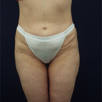 35-44 year old woman treated with Liposuction after 1791755