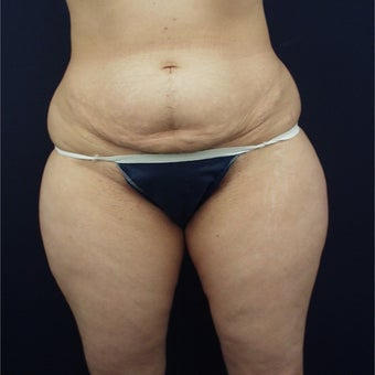 35-44 year old woman treated with Liposuction before 1791755