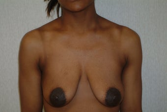 26 year old woman with droopy small breasts