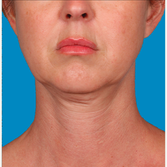 "45-54 year old woman treated with Kybella for corruption of sub mental fullness /""double chin"" before 2334970"