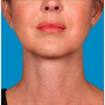 "45-54 year old woman treated with Kybella for corruption of sub mental fullness /""double chin"" after 2334970"