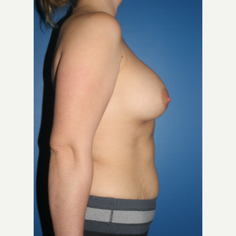 25-34 year old woman treated with Breast Augmentation after 3789172