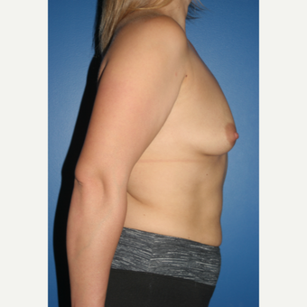 25-34 year old woman treated with Breast Augmentation before 3789172