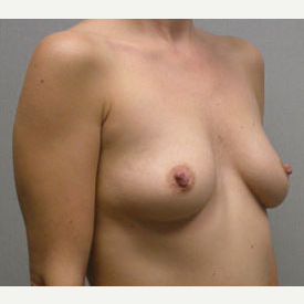 Breast Augmentation before 3681114