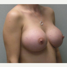 Breast Augmentation after 3681114