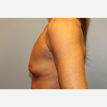 45-54 year old woman treated with Breast Augmentation before 3569560