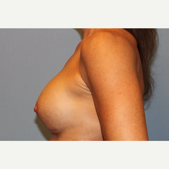 45-54 year old woman treated with Breast Augmentation after 3569560