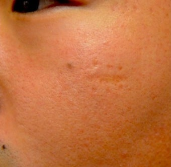 18-24 year old man treated with Acne Scars Treatment before 2059255