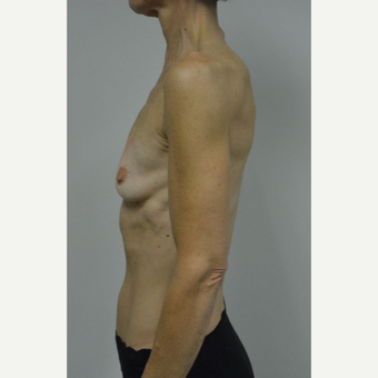 55-64 year old woman treated with Breast Augmentation before 3054981