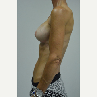 55-64 year old woman treated with Breast Augmentation after 3054981